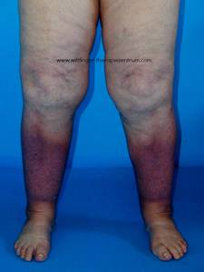 how to get rid of lymphedema in legs